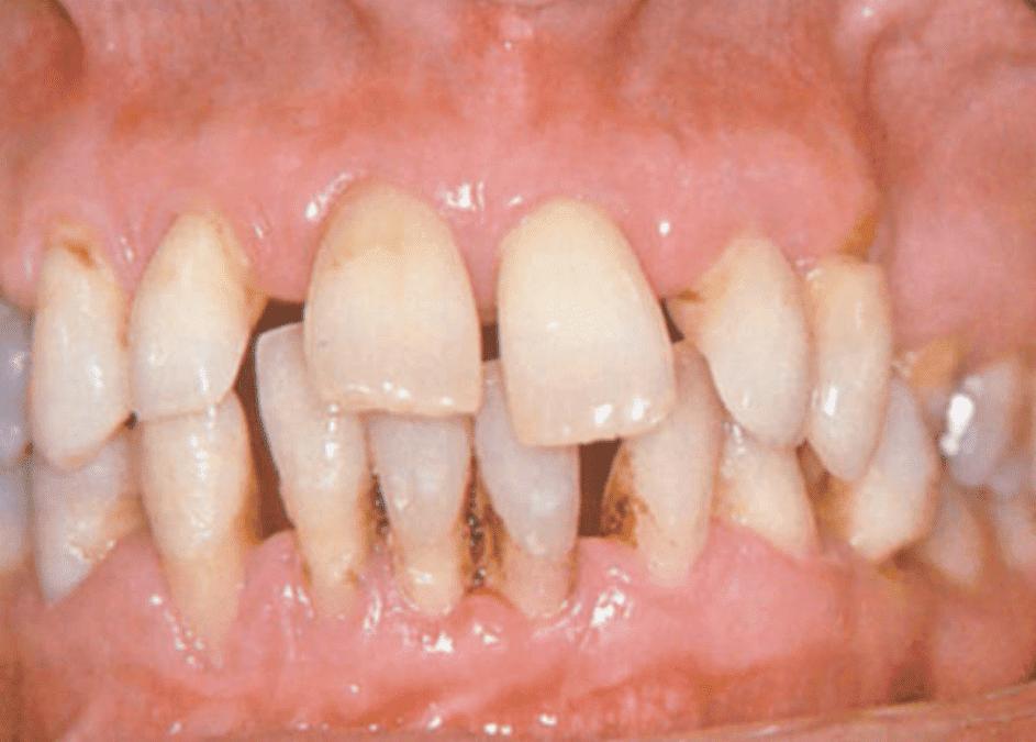 Krvavitev dlesni