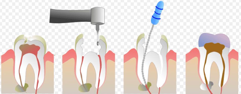 Zdravljenje zoba