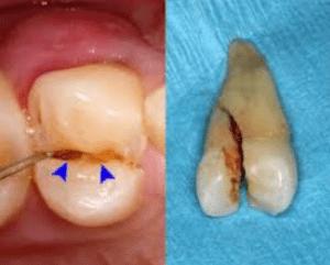 Primer zloma zoba