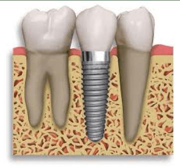 Zobni implantat prerez