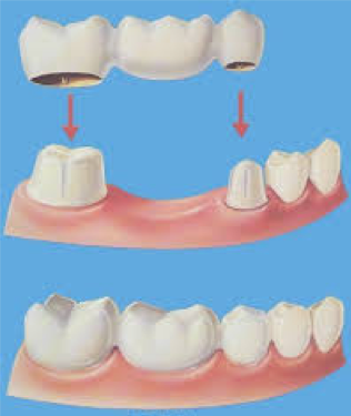 Zobni implantat protetična nadgradnja
